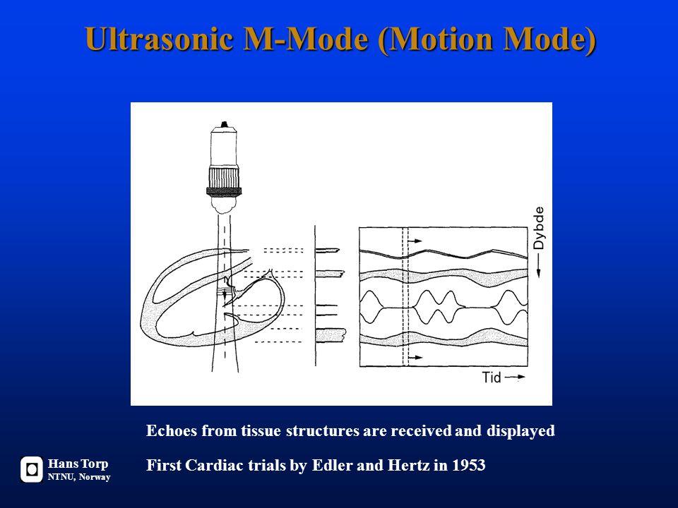 Ultrasonic M-Mode (Motion Mode)