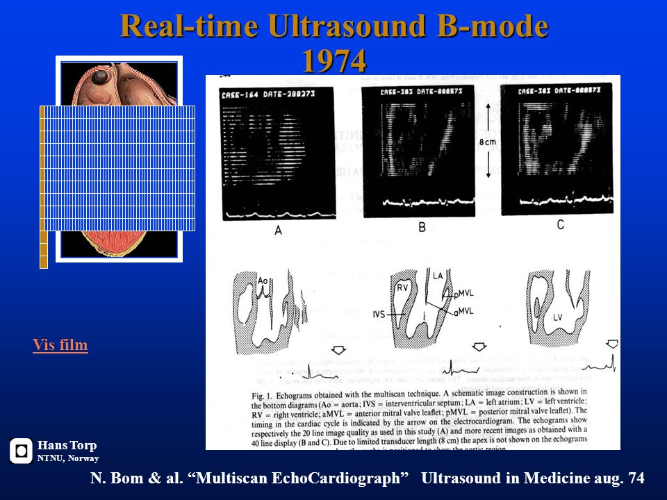 Real-time Ultrasound B-mode 1974