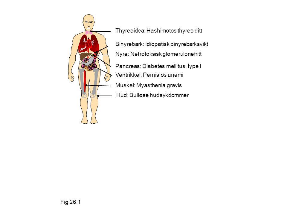 Fig 26.1 Thyreoidea: Hashimotos thyreoiditt. Binyrebark: Idiopatisk binyrebarksvikt. Nyre: Nefrotoksisk glomerulonefritt.