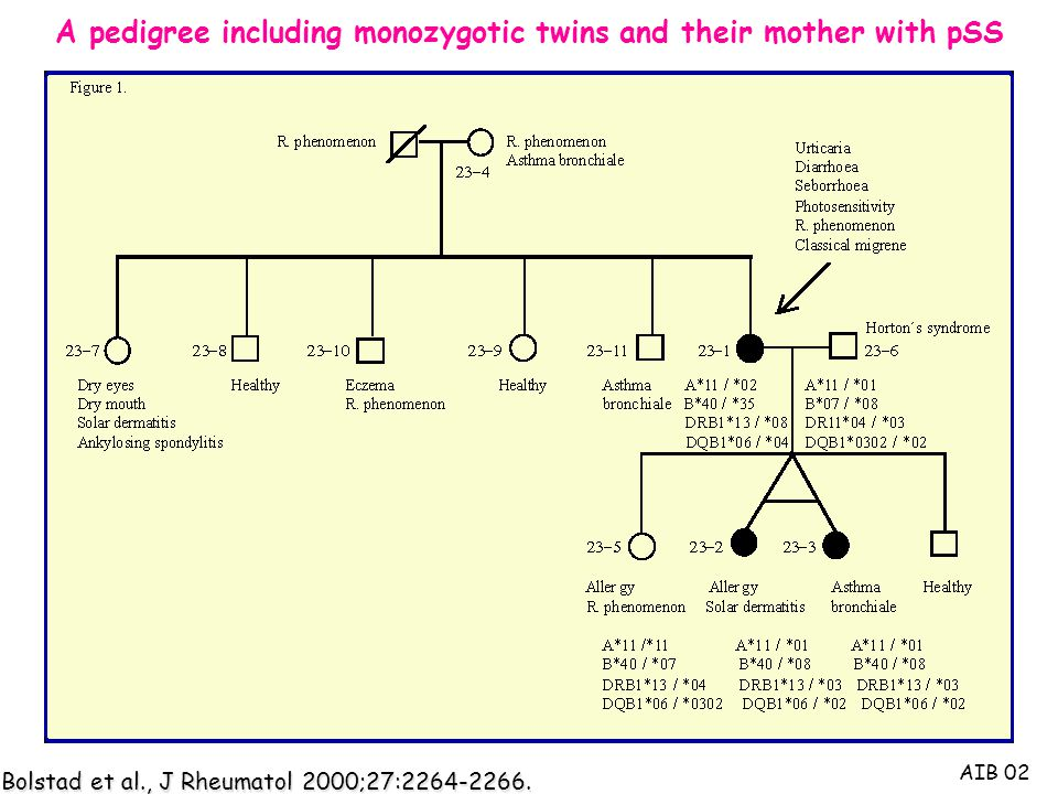 A pedigree including monozygotic twins and their mother with pSS