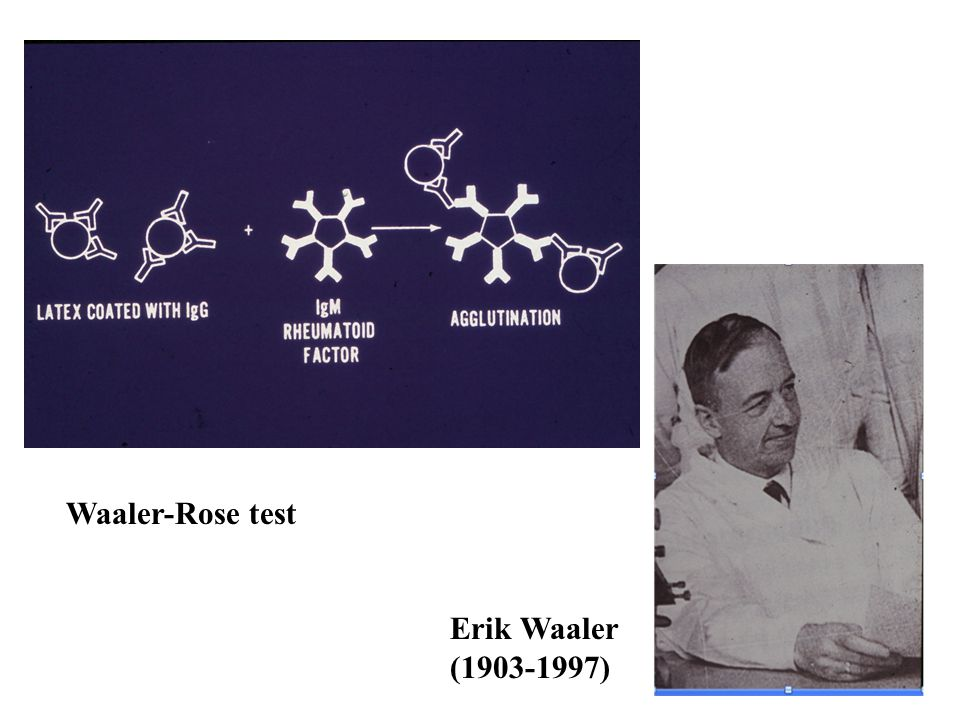 Waaler-Rose test Erik Waaler (1903-1997)