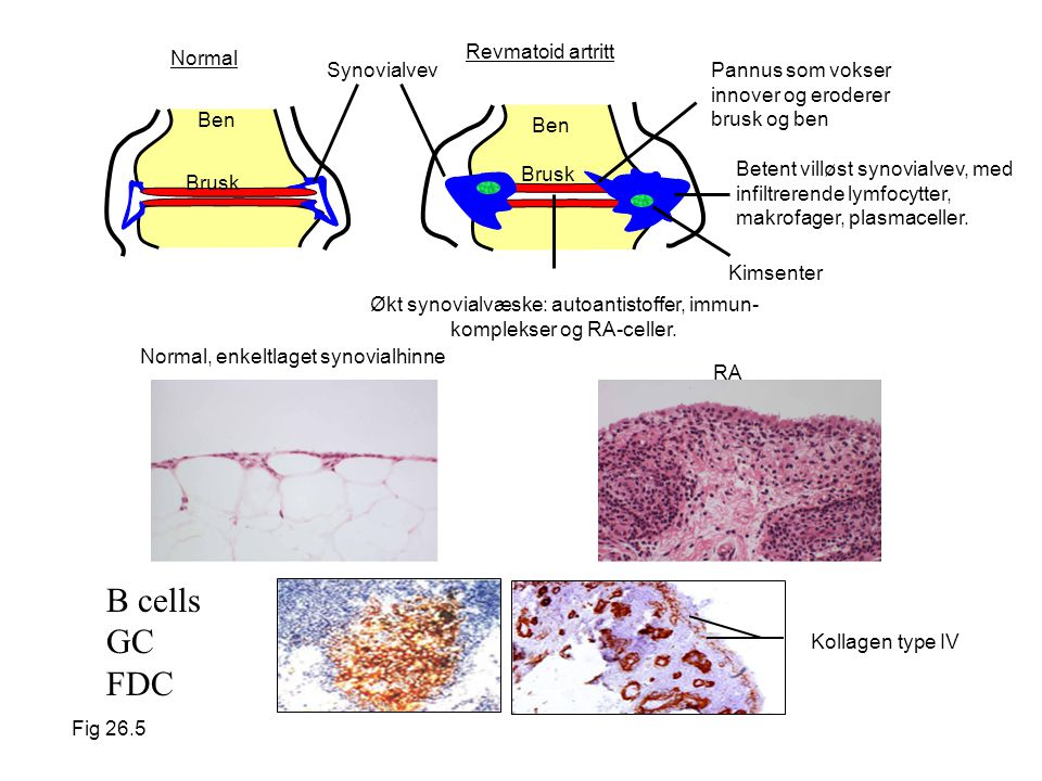 B cells GC FDC Revmatoid artritt Normal Synovialvev