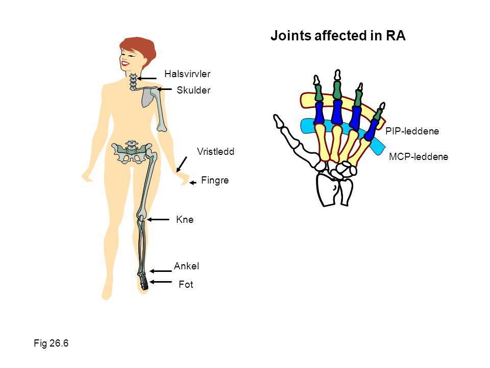 Joints affected in RA Halsvirvler Skulder PIP-leddene Vristledd