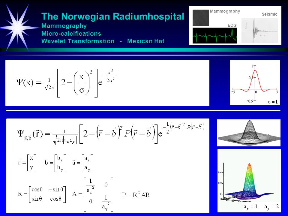 Mammography The Norwegian Radiumhospital Mammography Micro-calcifications Wavelet Transformation - Mexican Hat.