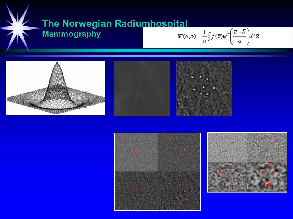 The Norwegian Radiumhospital Mammography