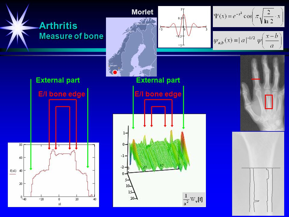 Arthritis Measure of bone