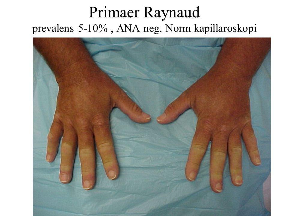 Primaer Raynaud prevalens 5-10% , ANA neg, Norm kapillaroskopi