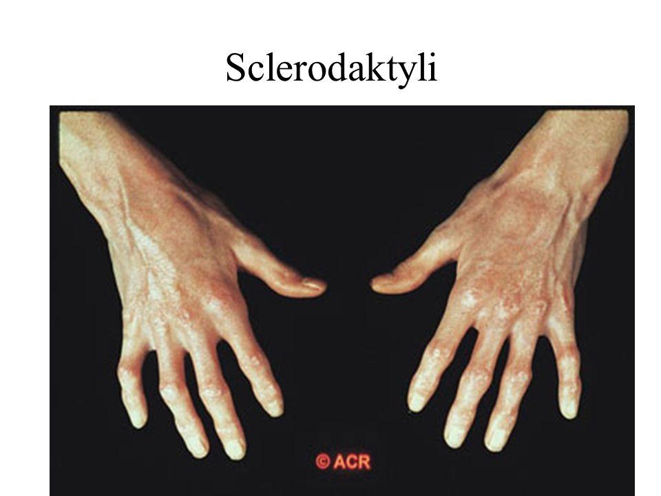 Sclerodaktyli