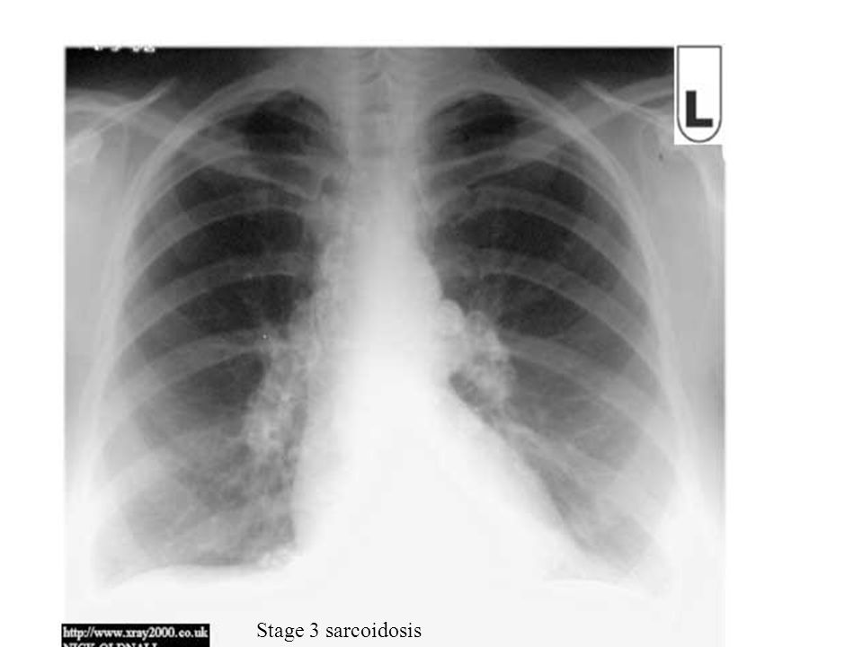 Stage 3 sarcoidosis