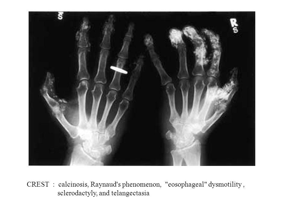 CREST : calcinosis, Raynaud s phenomenon, eosophageal dysmotility ,