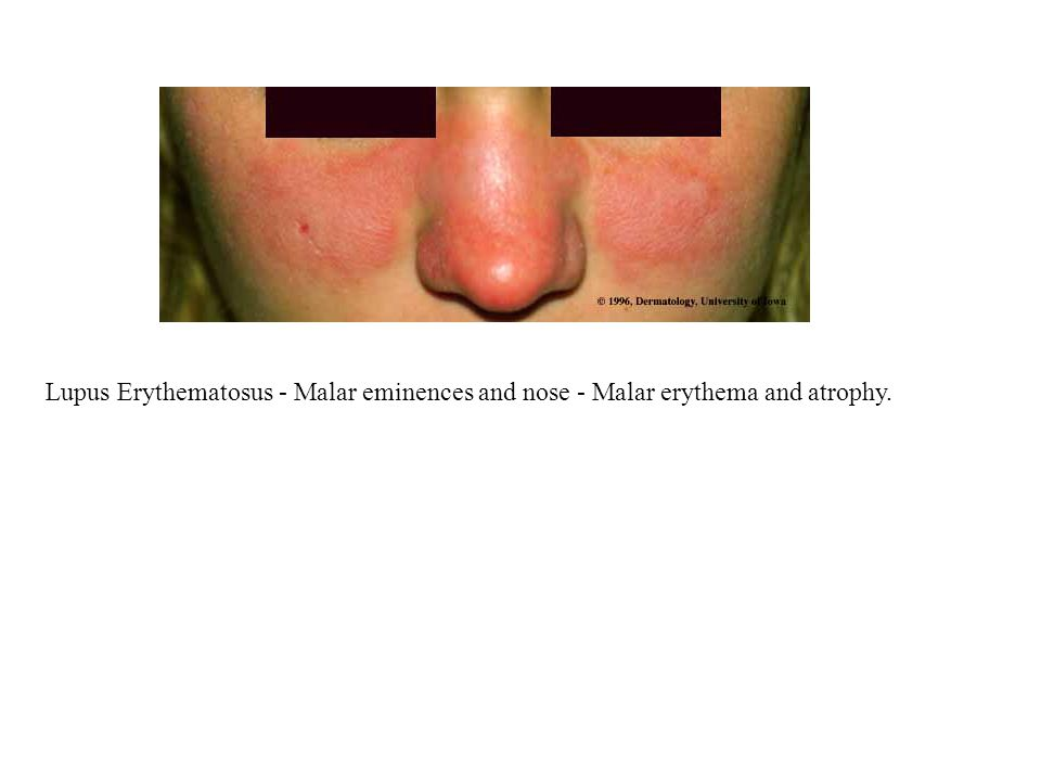 Lupus Erythematosus - Malar eminences and nose - Malar erythema and atrophy.