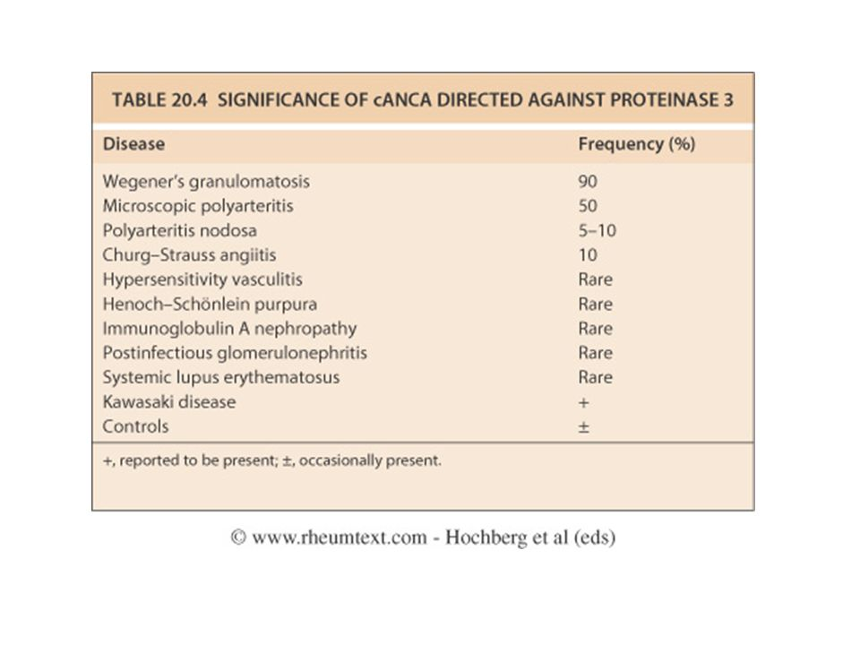 Table 20.4 Significance of cANCA directed against proteinase 3