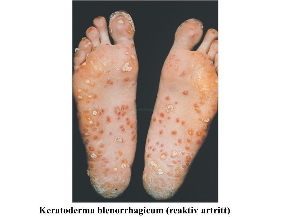 Keratoderma blenorrhagicum (reaktiv artritt)