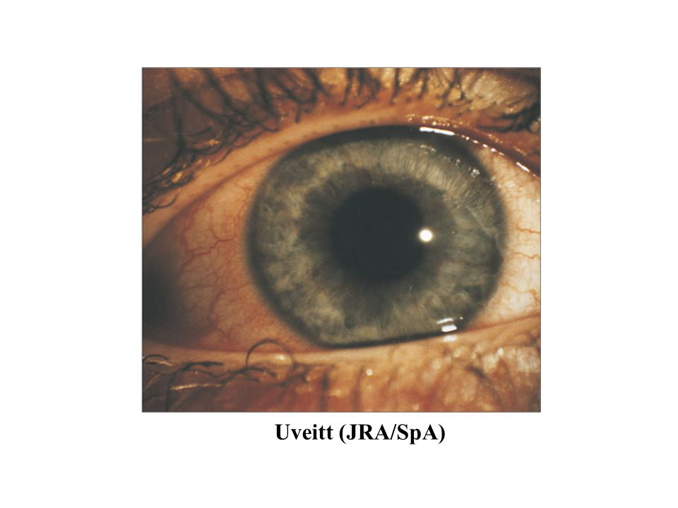 Fig Chronic uveitis in seronegative juvenile arthritis – white eye uveitis.