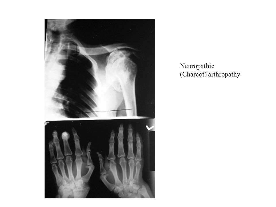 Neuropathic (Charcot) arthropathy