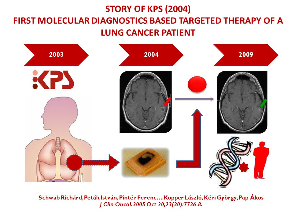 Story of kps (2004) First molecular diagnostics based targeted tHerapy of a LUNG CANCER PATIENT. 2003.