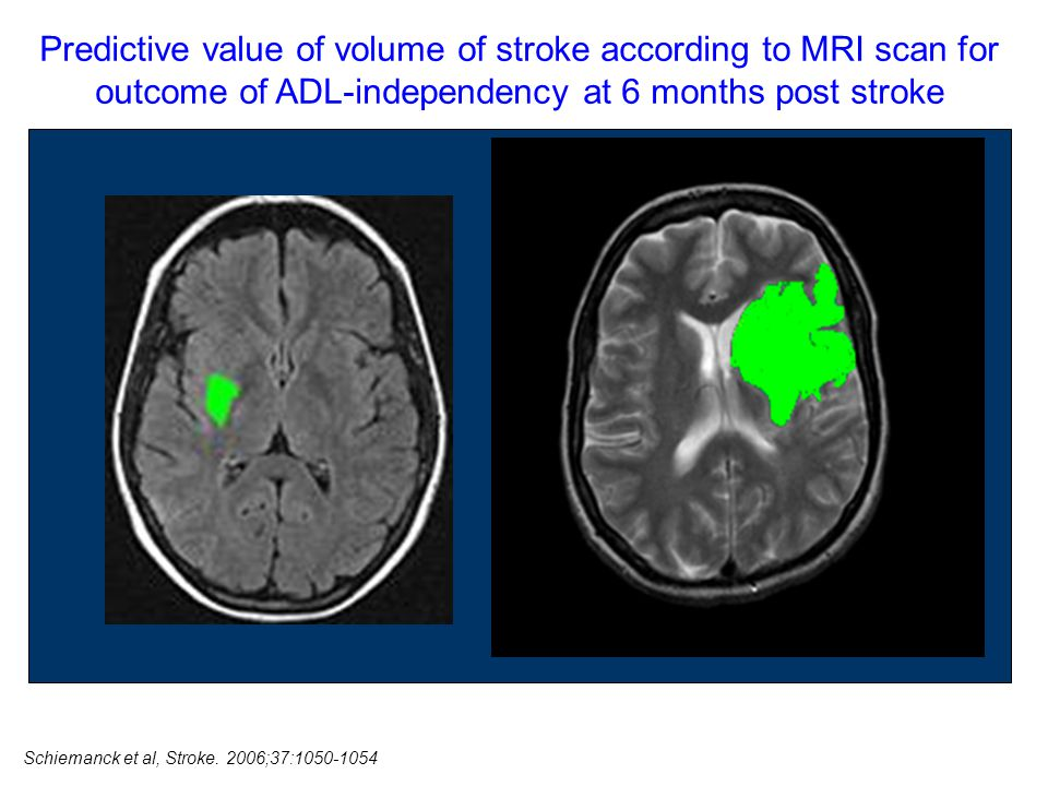 Predictive value of volume of stroke according to MRI scan for outcome of ADL-independency at 6 months post stroke