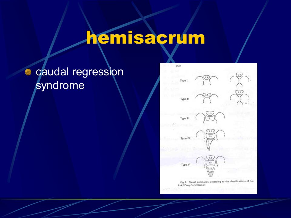 hemisacrum caudal regression syndrome