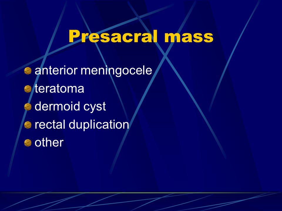 Presacral mass anterior meningocele teratoma dermoid cyst