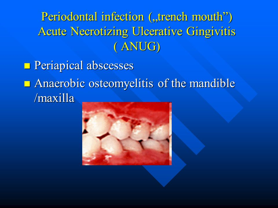 "Periodontal infection (""trench mouth ) Acute Necrotizing Ulcerative Gingivitis ( ANUG)"
