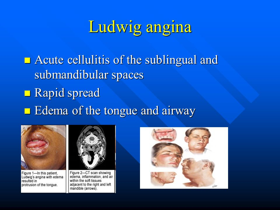 Ludwig angina Acute cellulitis of the sublingual and submandibular spaces.