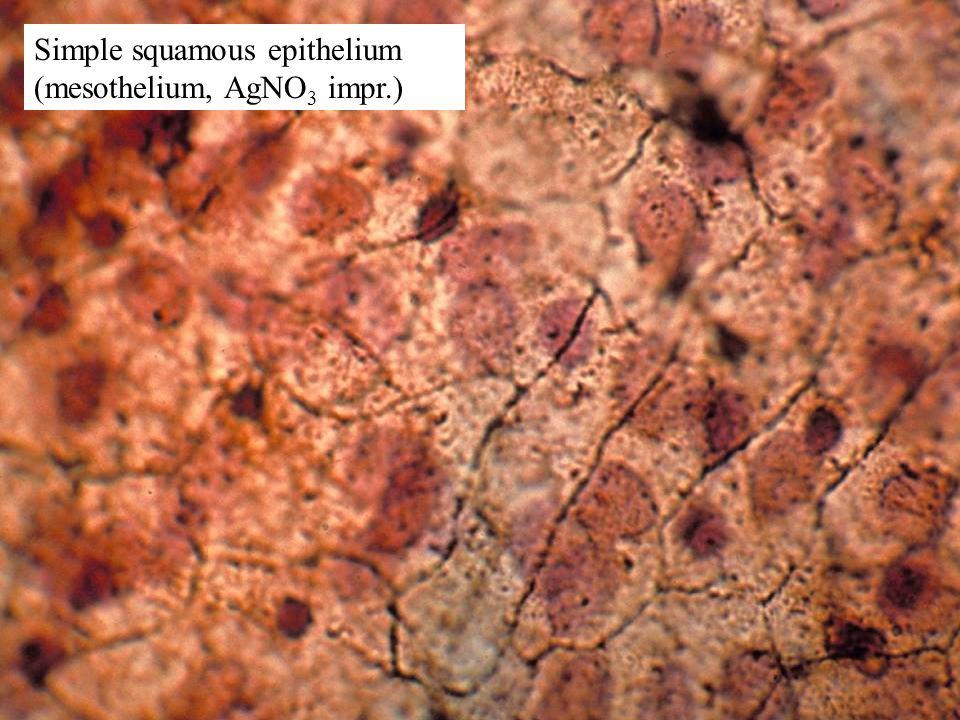 Simple squamous epithelium (mesothelium, AgNO3 impr.)