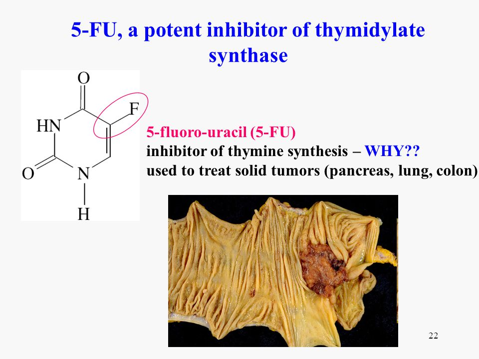5-FU, a potent inhibitor of thymidylate