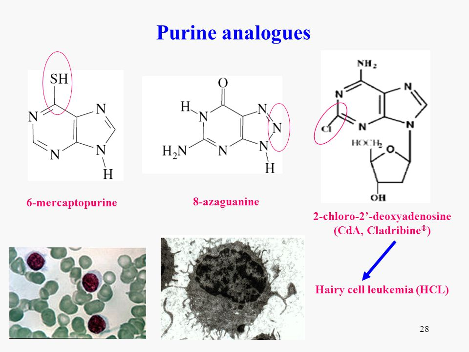 2-chloro-2'-deoxyadenosine Hairy cell leukemia (HCL)