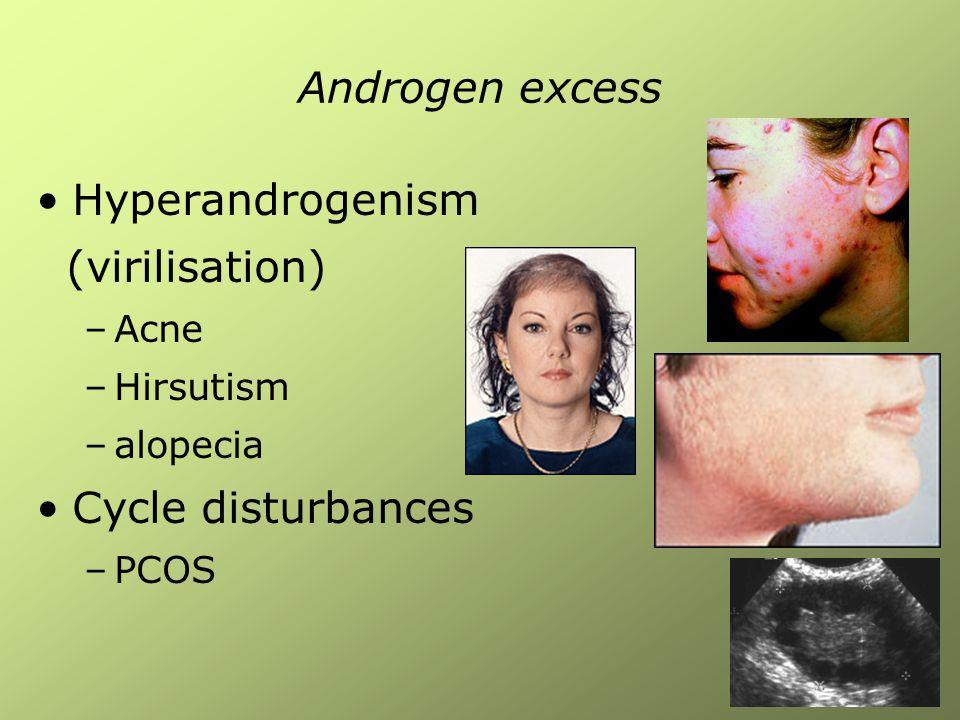 Androgen excess Hyperandrogenism (virilisation) Cycle disturbances