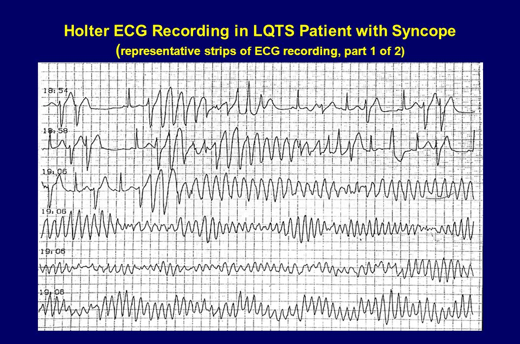 Holter ECG Recording in LQTS Patient with Syncope (representative strips of ECG recording, part 1 of 2)