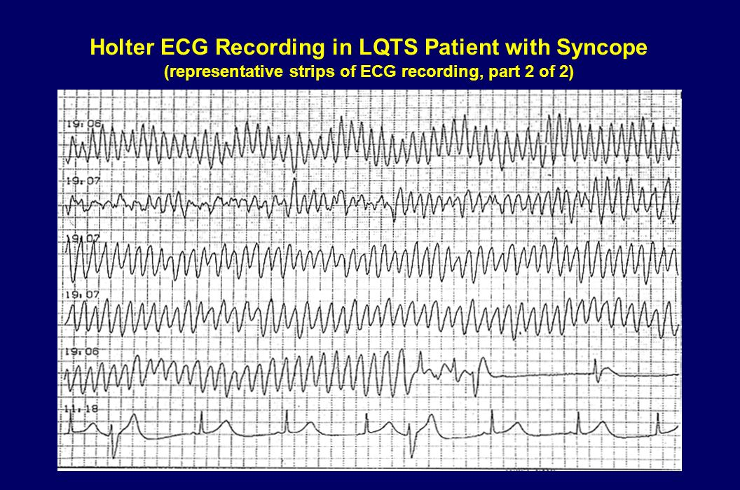 Holter ECG Recording in LQTS Patient with Syncope (representative strips of ECG recording, part 2 of 2)