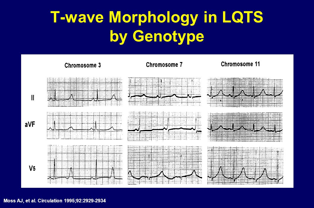 T-wave Morphology in LQTS by Genotype
