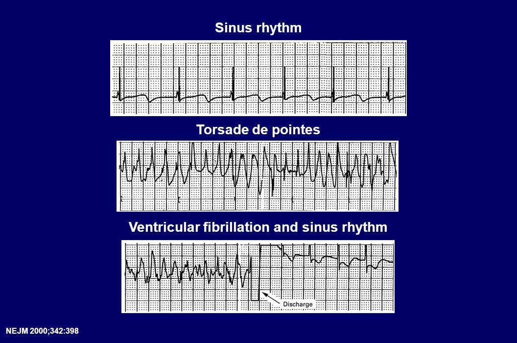 Ventricular fibrillation and sinus rhythm