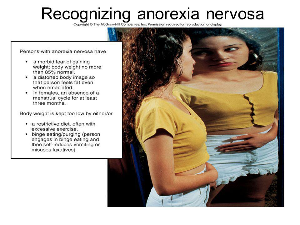 Recognizing anorexia nervosa