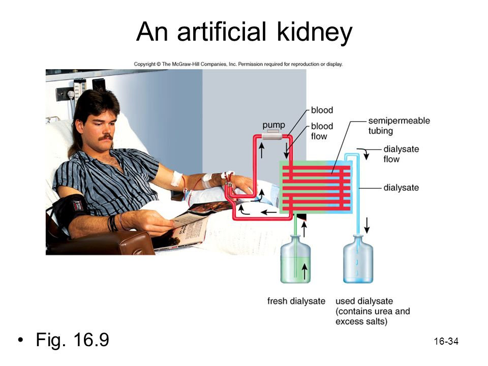 An artificial kidney Fig. 16.9