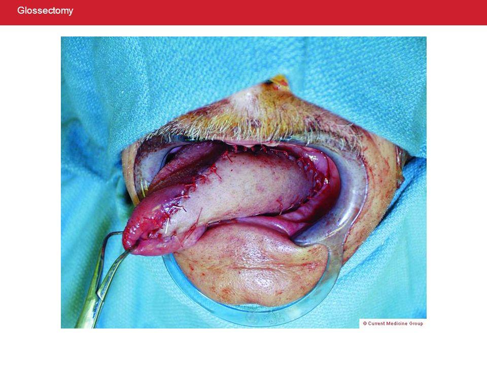 Glossectomy