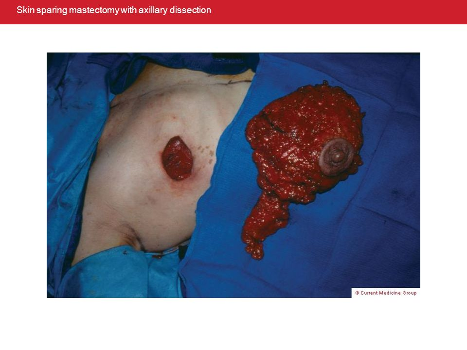 Skin sparing mastectomy with axillary dissection