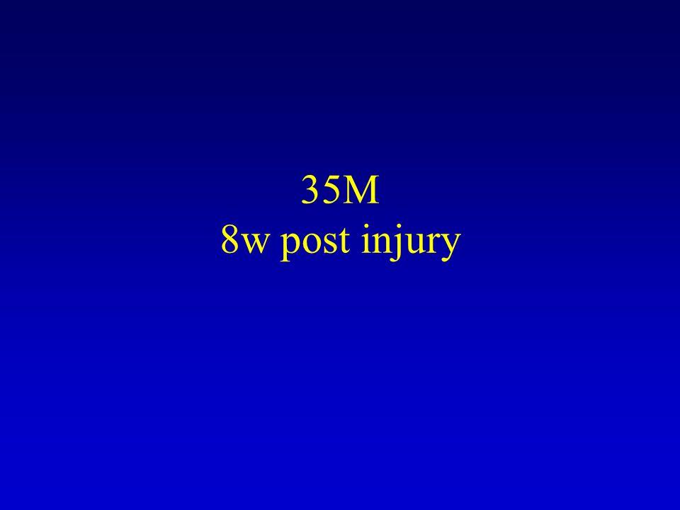 35M 8w post injury