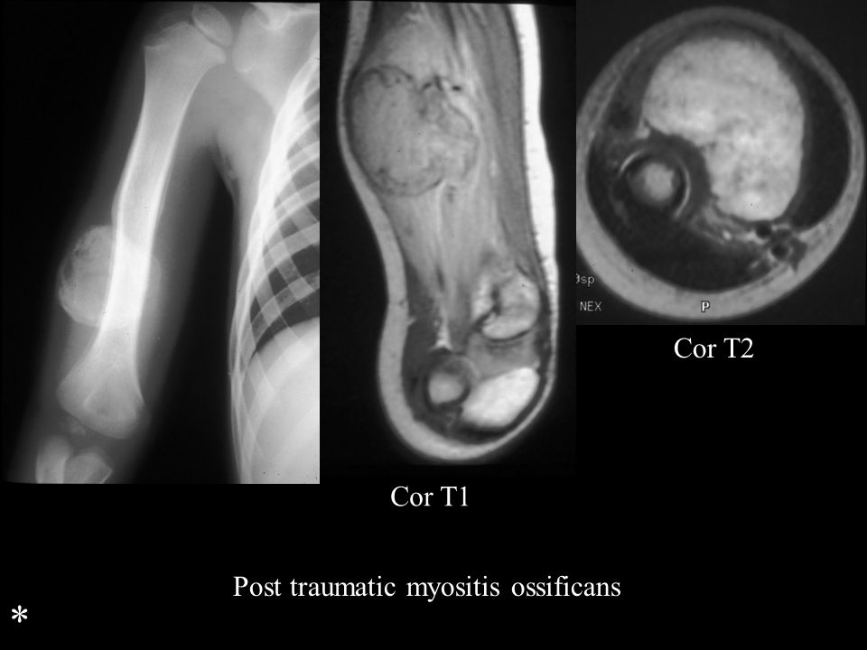 Cor T2 Cor T1 Post traumatic myositis ossificans *