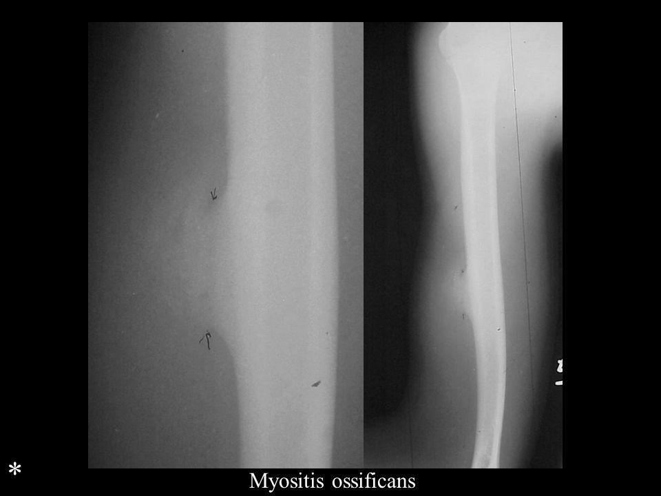 * Myositis ossificans