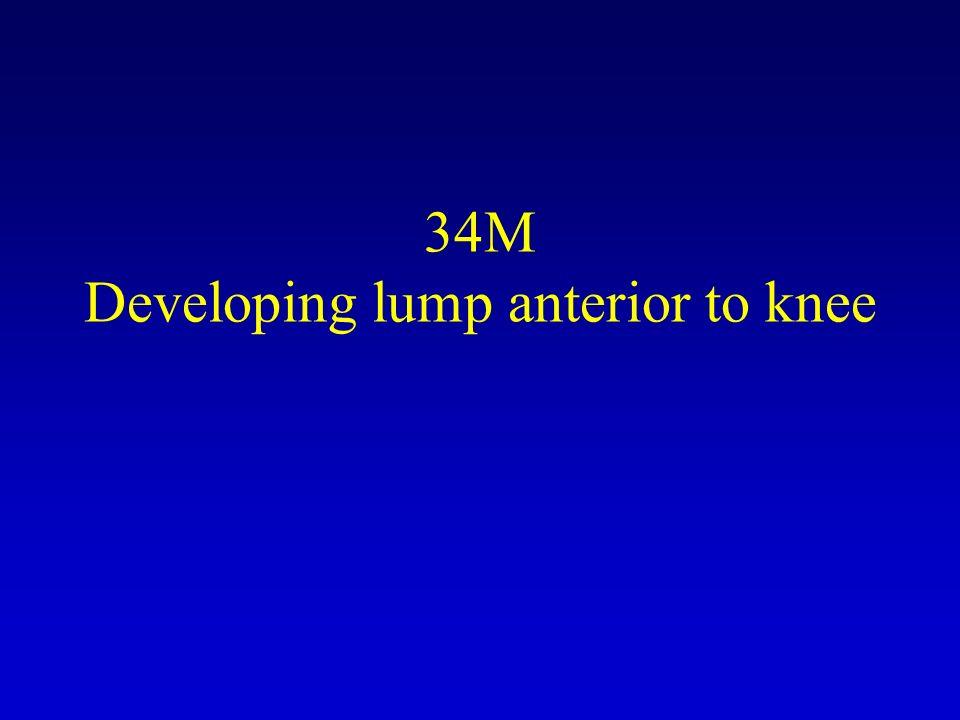 34M Developing lump anterior to knee