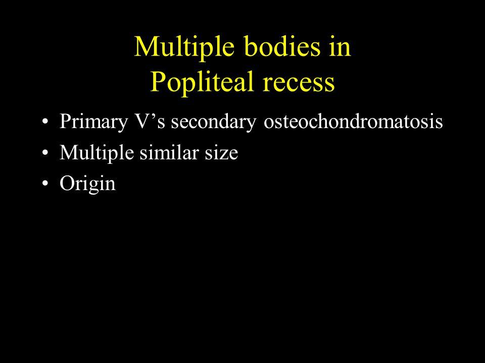 Multiple bodies in Popliteal recess