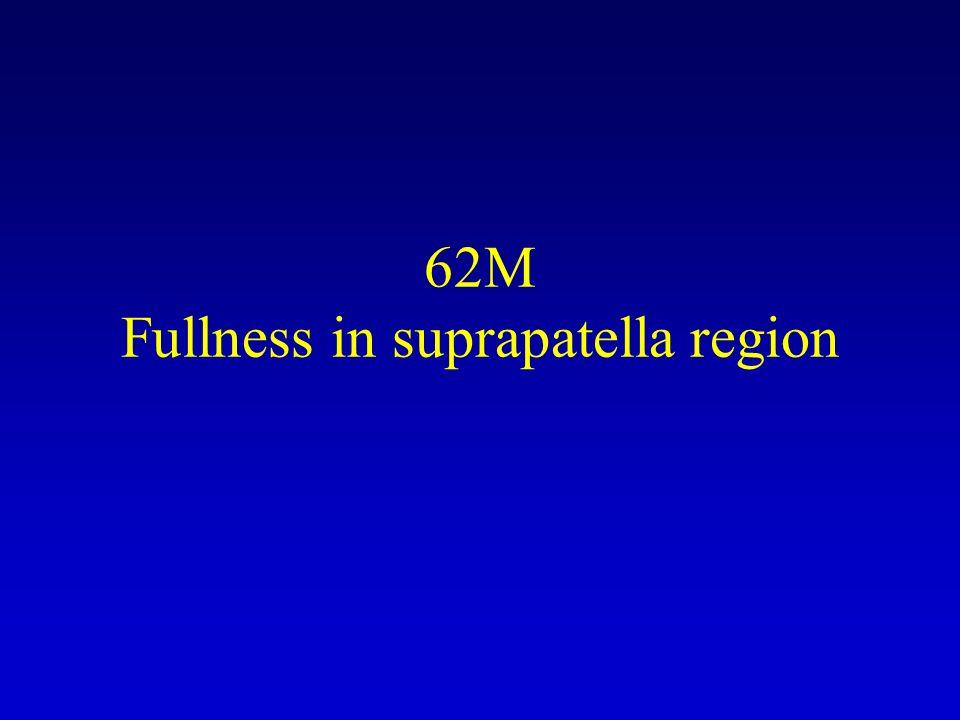 62M Fullness in suprapatella region