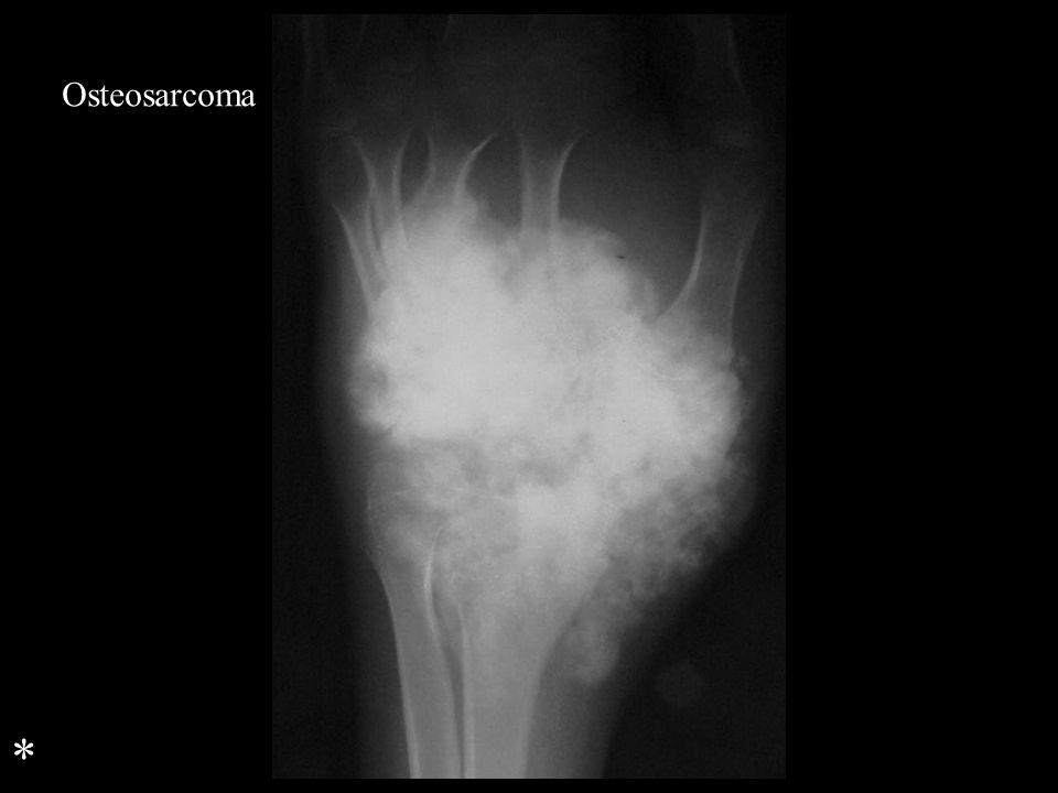 Osteosarcoma *