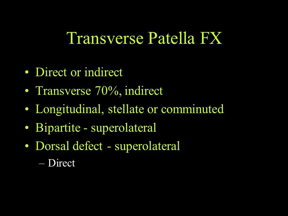 Transverse Patella FX Direct or indirect Transverse 70%, indirect