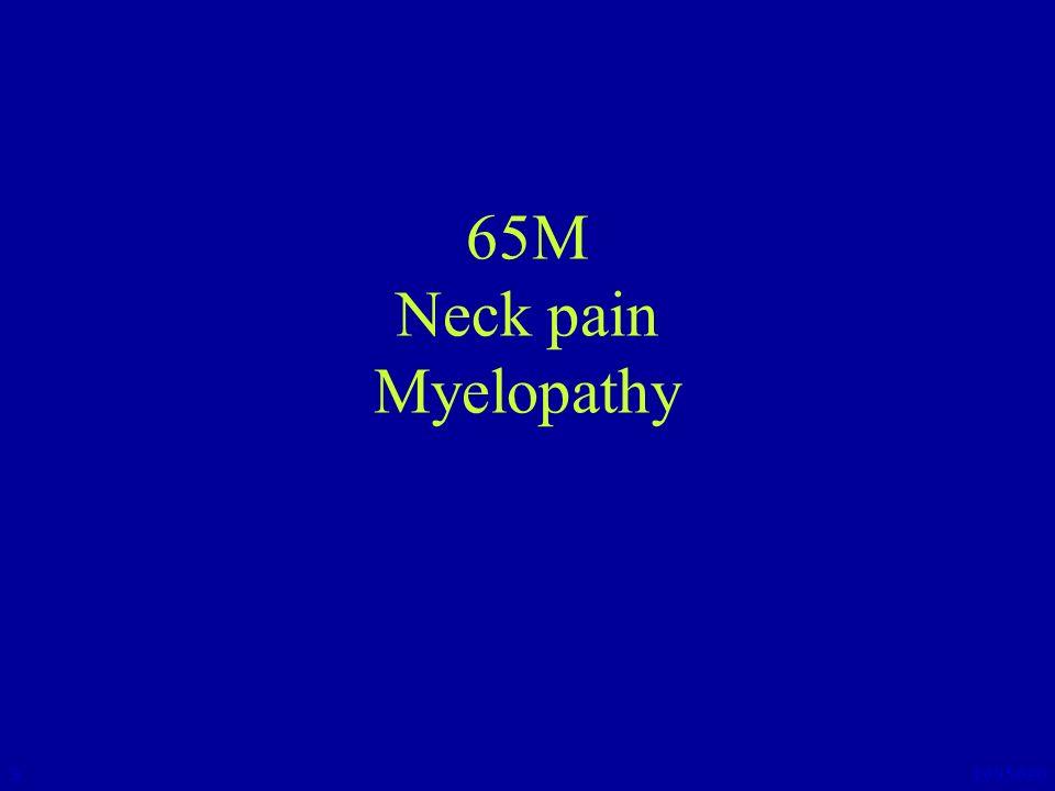 65M Neck pain Myelopathy 3 1995690