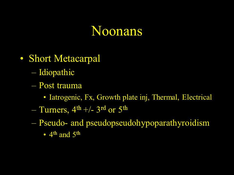 Noonans Short Metacarpal Idiopathic Post trauma