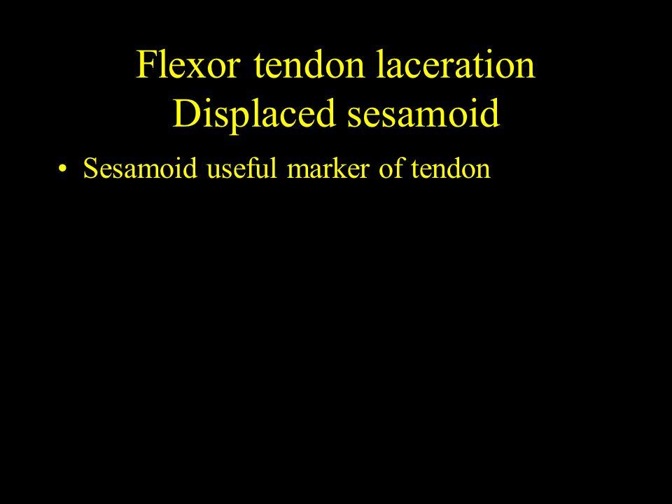 Flexor tendon laceration Displaced sesamoid