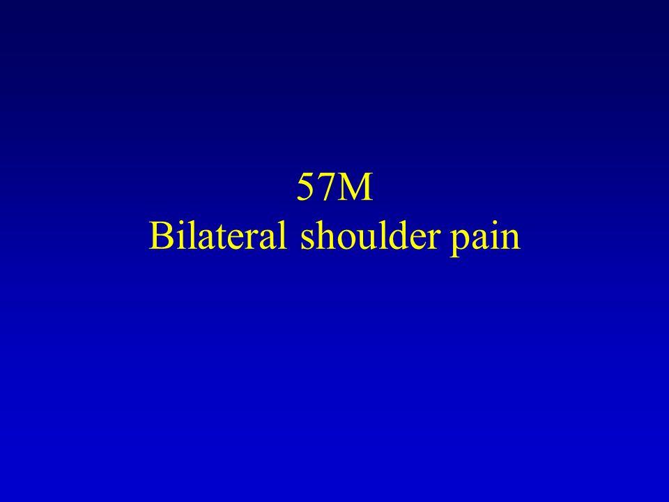 57M Bilateral shoulder pain