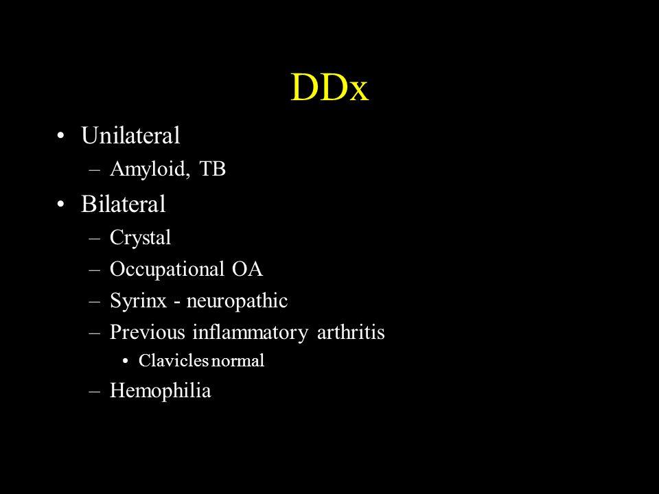 DDx Unilateral Bilateral Amyloid, TB Crystal Occupational OA